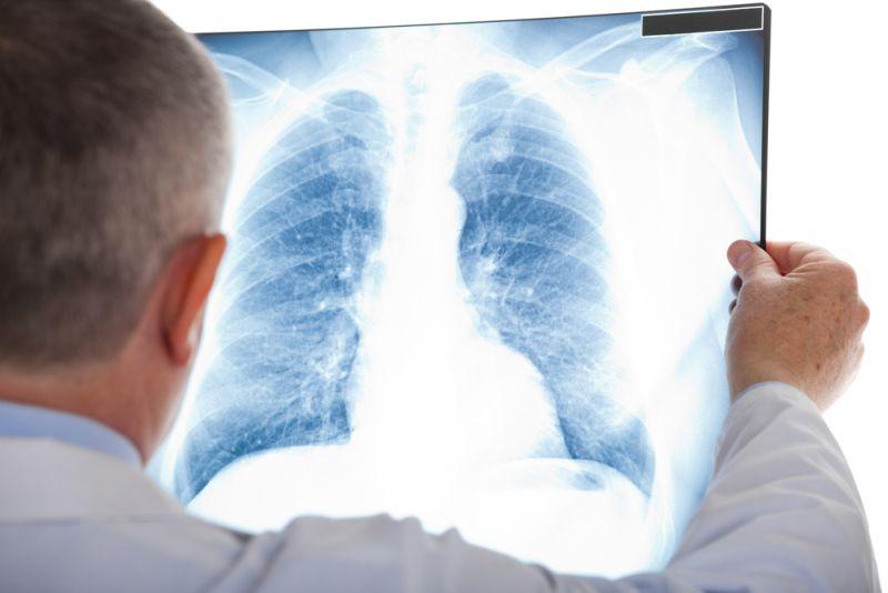 https: img.okezone.com content 2020 03 31 481 2191742 bob-hasan-meninggal-kenali-gejala-kanker-paru-yang-mirip-tb-TFomXLdoHa.jpg
