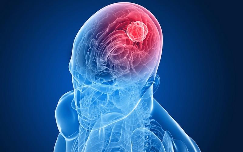 https: img.okezone.com content 2020 04 10 481 2197215 selain-meningitis-yang-diidap-glenn-fredly-3-penyakit-otak-lain-ini-juga-berbahaya-28HQeGThiz.jpg