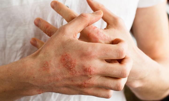 https: img.okezone.com content 2020 04 15 481 2199377 waspada-kulit-gatal-dan-memerah-bisa-jadi-gejala-covid-19-yang-tak-terdeteksi-MBddjM5COZ.jpg
