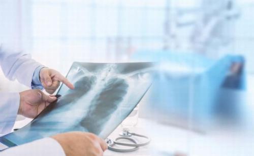 https: img.okezone.com content 2020 04 28 481 2205886 menggigil-hingga-sakit-kepala-catat-6-gejala-baru-covid-19-versi-cdc-VTuUbaRR5W.jpg