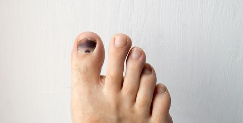 https: img.okezone.com content 2020 06 09 612 2227218 cek-anda-diabetes-atau-tidak-lewat-warna-jari-kaki-zrQKAKkVV4.jpg