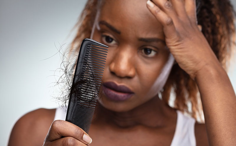 https: img.okezone.com content 2020 08 07 611 2258771 pusing-rambut-rontok-begini-4-cara-merawatnya-SnwXYBzUyW.jpg
