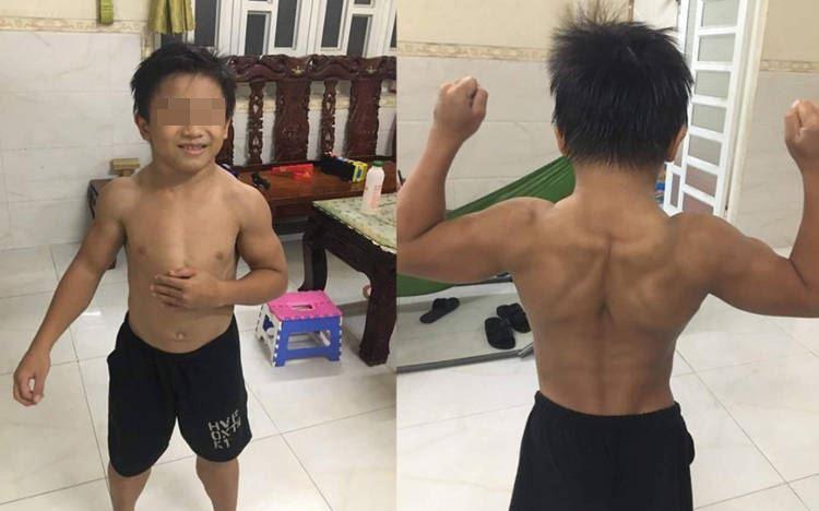 https: img.okezone.com content 2020 09 06 612 2273250 idap-sindrom-superman-bocah-10-tahun-ini-miliki-perut-sixpack-mBeWWXUQs6.jpg