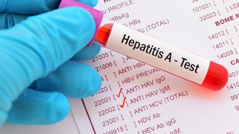 https: img.okezone.com content 2020 09 07 481 2273952 jaga-kebersihan-tangan-bisa-cegah-penularan-penyakit-hepatitis-a-eCulneXqtX.jpg