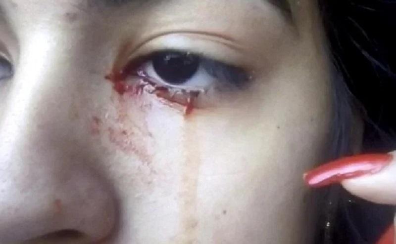 https: img.okezone.com content 2020 09 24 612 2282979 viral-gadis-15-tahun-menangis-darah-LGUETPXtuU.jpg