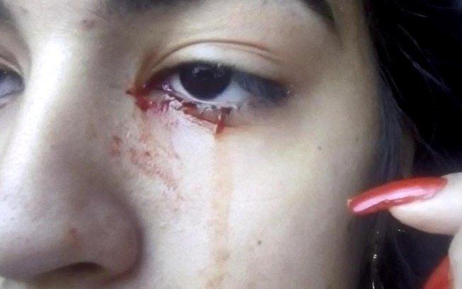 https: img.okezone.com content 2020 09 25 18 2283580 gadis-15-tahun-menangis-darah-buat-dokter-kebingungan-4UY9n60tNx.jpg