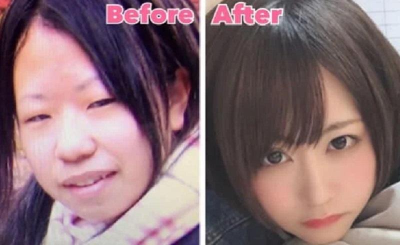 https: img.okezone.com content 2020 10 01 612 2286578 kisah-gadis-25-tahun-habiskan-ratusan-juta-untuk-permak-wajahnya-jDJeHjhgqg.jpg