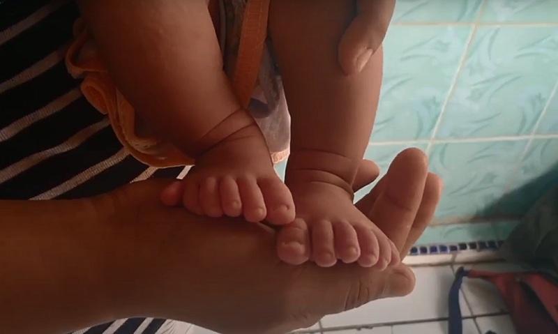 https: img.okezone.com content 2020 10 10 525 2291463 kakak-beradik-di-indramayu-lahir-dengan-12-jari-kaki-dan-tangan-V872ZqDZTf.jpg