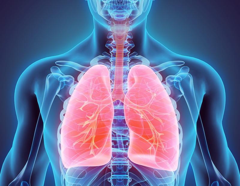 https: img.okezone.com content 2020 11 19 481 2312536 kenali-ciri-ciri-ppok-penyakit-yang-sebabkan-kematian-terbesar-keempat-dunia-jh0LXEkT2t.jpg