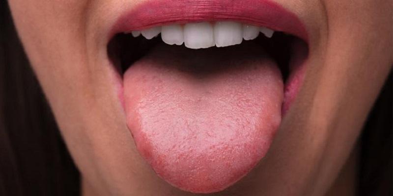https: img.okezone.com content 2021 01 16 620 2345481 gejala-baru-covid-19-bisa-dilihat-dari-kondisi-lidah-n7KPbw4w0D.jpg