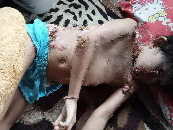 https: img.okezone.com content 2021 03 02 608 2370848 kisah-pilu-bocah-idap-penyakit-kulit-seperti-luka-bakar-hingga-ke-wajah-tak-ada-biaya-berobat-bjSkaTdVFU.jpg