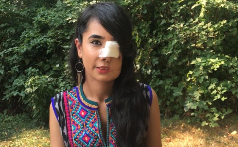 https: img.okezone.com content 2021 04 05 18 2389331 perempuan-afghanistan-yang-ditembak-wajahnya-bicara-di-hadapan-publik-HHLUHB3rdd.jpg