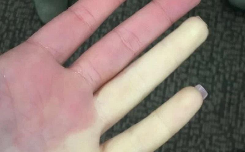 https: img.okezone.com content 2021 04 29 481 2402666 sindrom-raynaud-penyakit-langka-yang-ubah-jari-jadi-putih-atau-membiru-SCUGEsCxDb.jpg