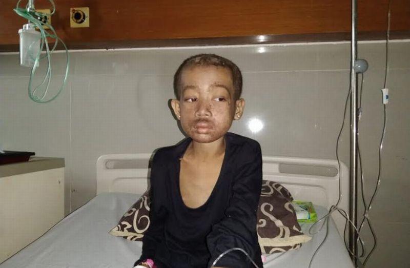 https: img.okezone.com content 2021 04 30 340 2403546 epa-anak-gizi-buruk-asal-pandeglang-yang-butuh-perhatian-pemerintah-Rp72LURb6f.jpg