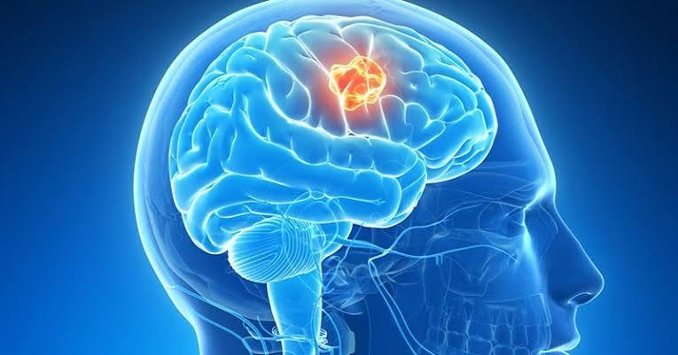 https: img.okezone.com content 2021 06 10 612 2423170 yuk-kenali-penyebab-gejala-tumor-otak-dan-cara-mengatasinya-S7mPDZV4Gt.jpeg