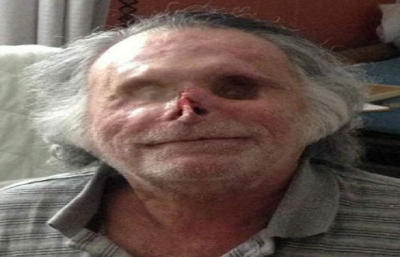 https: img.okezone.com content 2021 06 18 18 2427273 ngeri-wajah-pria-tunawisma-dimakan-kanibal-zombie-OvdDd6UXaw.jpg