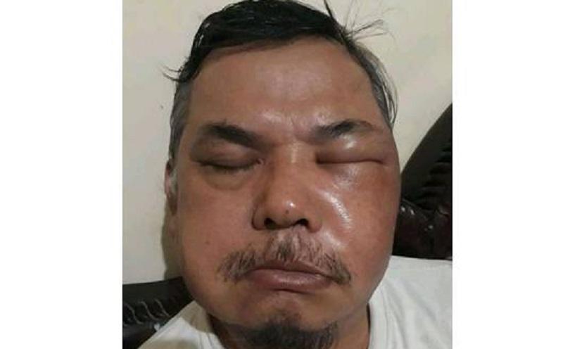 https: img.okezone.com content 2021 06 23 481 2429854 wajah-pria-bengkak-usai-divaksin-siti-nadia-bisa-saja-bukan-karena-vaksin-W2imO8zOH0.jpg