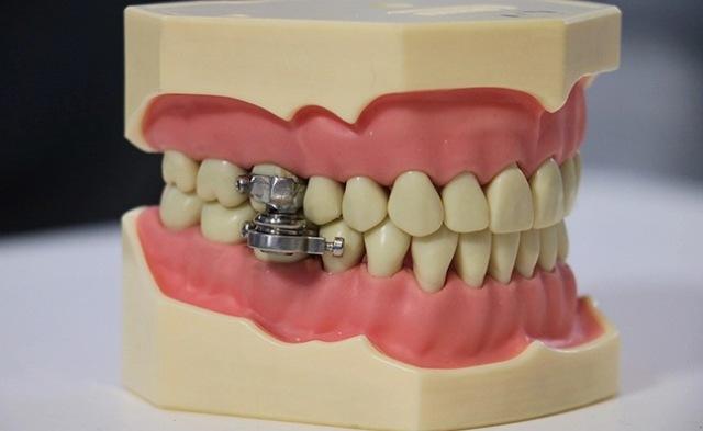 https: img.okezone.com content 2021 07 09 612 2438067 dipasang-di-gigi-perangkat-baru-ini-bisa-bantu-turunkan-berat-badan-zLjbbesJje.jpg