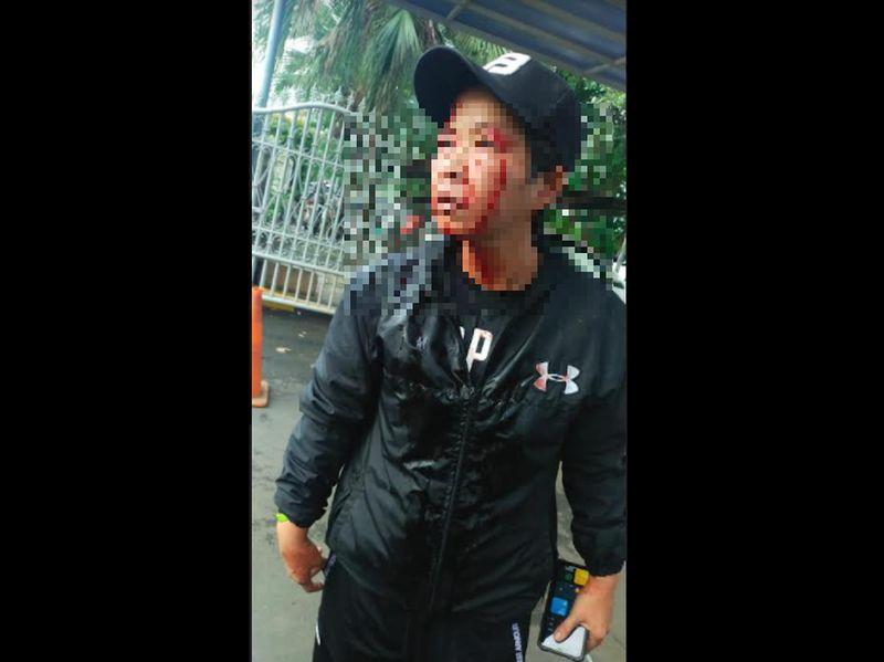 https: img.okezone.com content 2021 07 26 338 2446108 seorang-wanita-babak-belur-dipukuli-di-apartemen-kedoya-RcCsPtLdaX.jpg