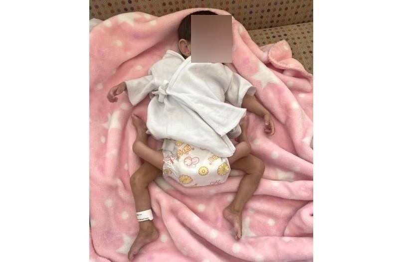 https: img.okezone.com content 2021 07 29 614 2447770 raja-salman-pantau-operasi-pemisahan-bayi-kembar-parasit-di-rs-arab-saudi-b2VjsR5gDK.jpg