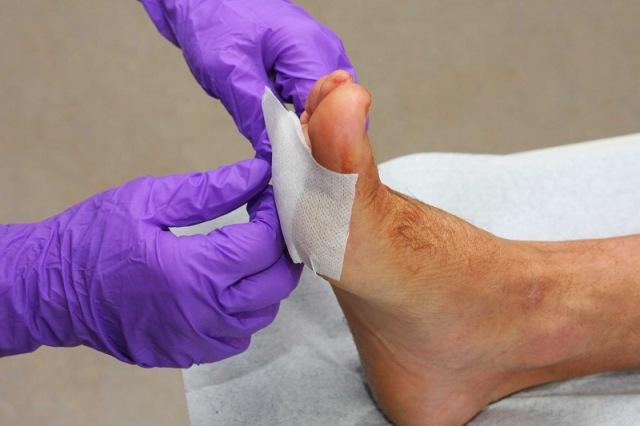 https: img.okezone.com content 2021 08 01 481 2449140 ini-cara-mencegah-amputasi-kaki-akibat-komplikasi-diabetes-D68Nuup21w.jpg