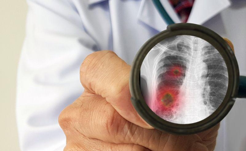 https: img.okezone.com content 2021 09 01 620 2464679 waspadai-serangan-penyakit-menular-di-masa-pandemi-covid-19-FOSAD94UiJ.jpg