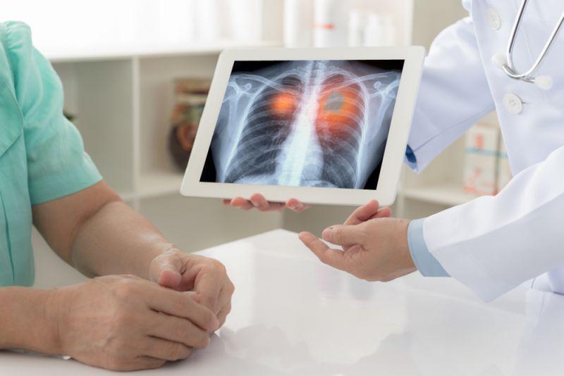 https: img.okezone.com content 2021 09 21 620 2474583 verawaty-fajrin-kena-kanker-paru-perempuan-lebih-mudah-kena-dibanding-pria-hNvYwCxxWf.jpg