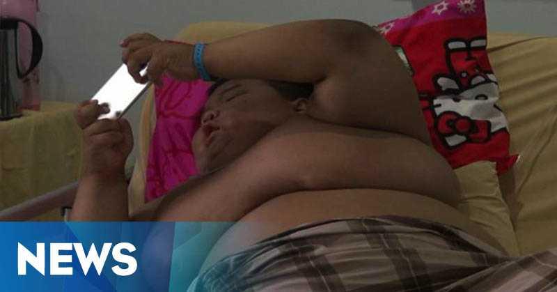 Rizki Bocah Obesitas Asal Palembang Kini Koma