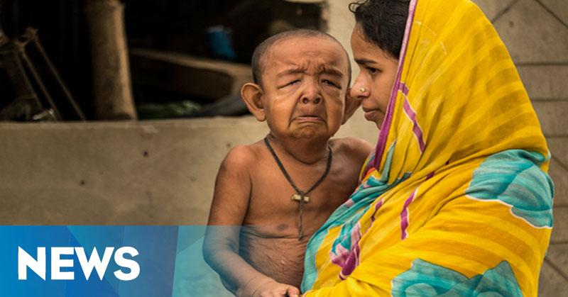 Tampak 20 Kali Lebih Tua, Bocah Bangladesh Ditakuti Teman Sebaya