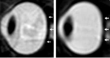 Cairan Pelindung Otak Ternyata Bisa Bikin Mata Astronot Buta