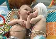 Operasi Pemisahan Berhasil, Bayi Kembar Ini Bisa Saling Berpelukan