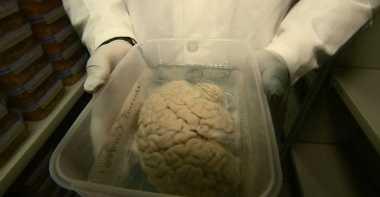 Peneliti Dorong Lebih Banyak Pendonor Otak