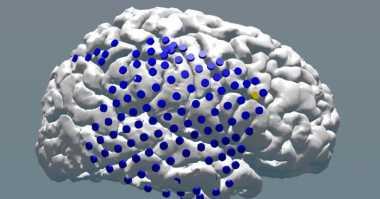 Stimulasi Otak dengan Listrik Bisa Tingkatkan Memori