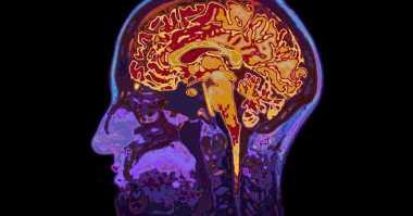 Ilmuwan Kembangkan 'Mini Brain' untuk Penyembuhan Autisme dan Epilepsi
