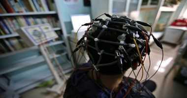 Canggih! Teknologi AI Deteksi Alzheimer 10 Tahun Sebelum Gejala Muncul