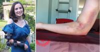 Miris, Donor Darah Berujung Cacat di Tangan