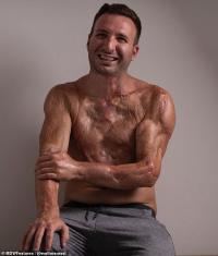 Kena Setrum 14.000 Volts, Kulit Lelaki Ini Meleleh Hingga ke Tulang dan Ototnya Hangus