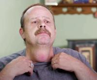 """Pria dengan Benjolan Seperti """"Testis"""" di Leher Selama 20 Tahun Berhasil Dioperasi"""
