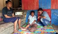 Anastasia, Gadis Manis Penderita Kaki Gajah Butuh Biaya Berobat