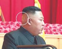 Terlihat dengan Perban Misterius di Kepala, Kondisi Kesehatan Kim Jong-un Dipertanyakan