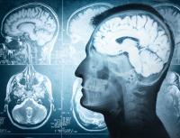 Kenali Gejala Awal Pendarahan Otak yang Serang Tukul Arwana