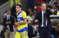 Jelang Inter Milan vs Juventus, Allegri Bicara soal Gelar Juara Liga Italia