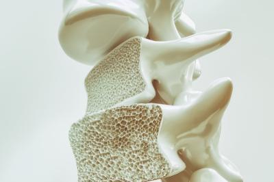 Perempuan dan Usia Muda Juga Rentan Terkena Osteoporosis