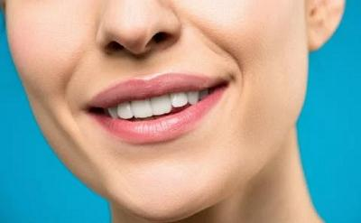 5 Cara Memutihkan Gigi Anda agar Makin Percaya Diri