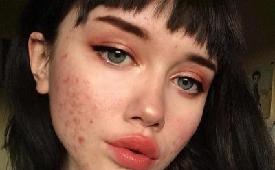 Beautypedia, Apa Itu Jerawat?