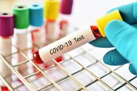 Vaksin Covid-19 Bikin IHSG Tancap Gas