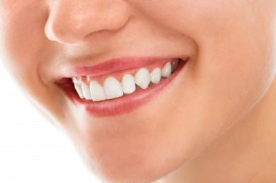 5 Cara Alami dan Mudah Merawat Gigi Tetap Putih, Yuk Dicoba