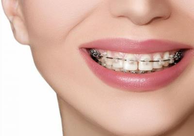 Berapa Lama Behel Gigi Boleh Digunakan? Ini Penjelasan Dokter