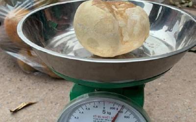 Viral! Wanita Ini Miliki Batu Kandung Kemih Beratnya Nyaris Setengah Kilogram