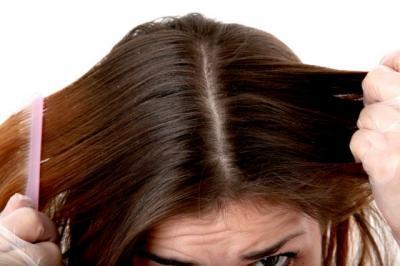 4 Cara Ampuh Usir Ketombe Membandel di Kulit Kepala